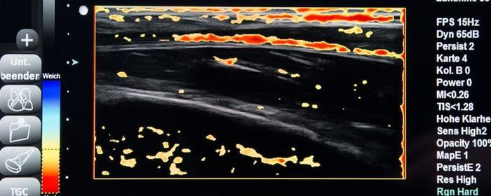 Ultraschall – Elastografie